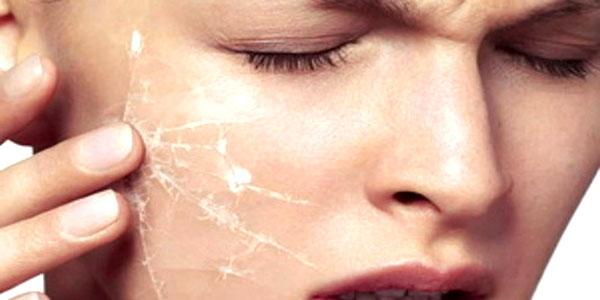 Как ухаживать за чувствительной кожей лица в домашних условиях