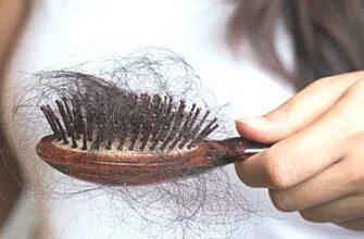 выпадают волосы фото